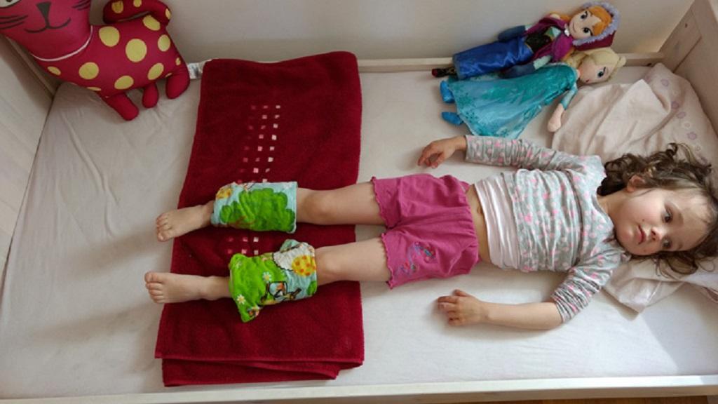 Wadenwickel gegen Fieber - Heilwirkung Essig